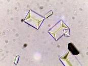 Triple-phosphate-crystal