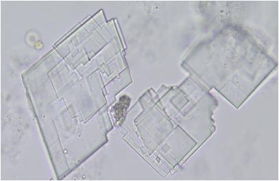 cholesterol crystal