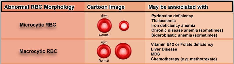 microcytosis: rbcs smaller than the normal size are considered as  microcytes  microcytosis is seen in : iron deficiency anemia, thalassemia,  lead poisoning,