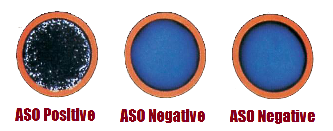 anti-streptolysin o (aso) test : principle, procedure, Skeleton