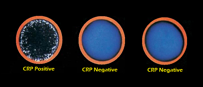 What is the normal range for a C-reactive protein test?