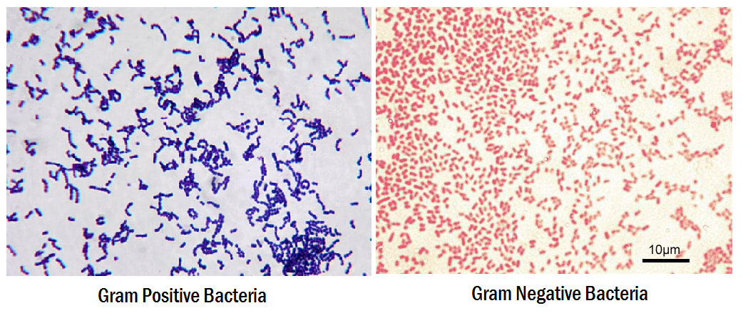 how to do gram staining A gram stain is a test  a technician will use a special staining technique to make it easier to see bacteria under a microscope what do the results of a gram.