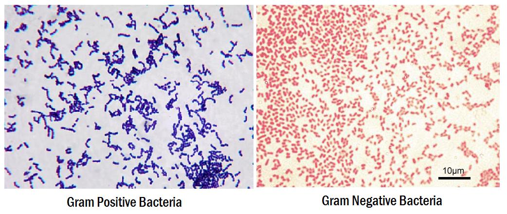 gram-positive-vs-gram-negative