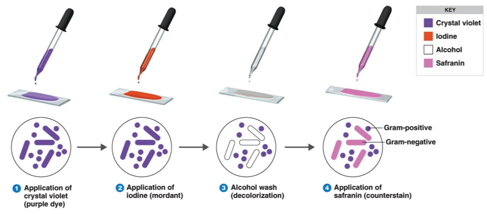 Gram Staining : Principle, Procedure, Interpretation and