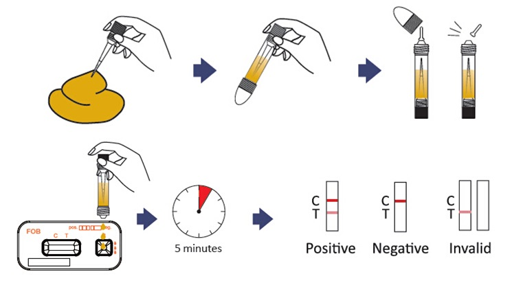 Fecal Occult Blood Test Methods Principle Procedure