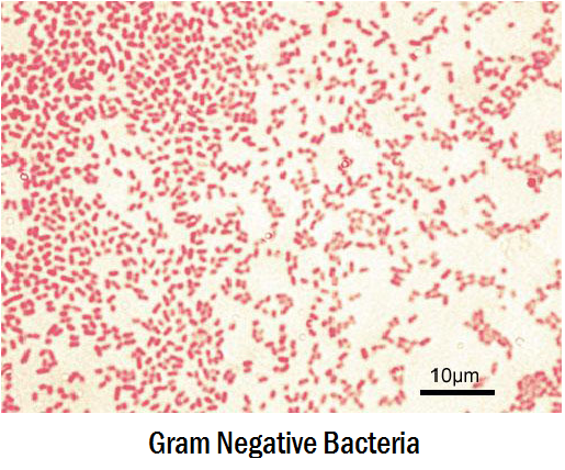 lab report gram positive and gram negative bacteria Differentiating gram-negative and gram-positive bacteria of gram-positive bacteria have a higher of gram-negative bacteria gram-positive organisms are.