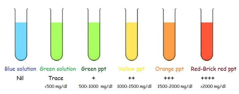 Benedict's Test : Principle, Reagent Preparation, Procedure and