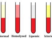 Hemolysed-Lipemic-Icteric-Samples