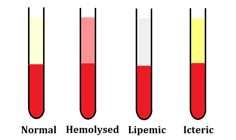 Hemolysed-Lipemic-Icteric-Samples