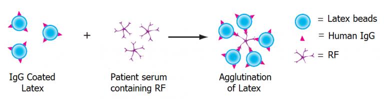 Rheumatoid-Factor-RF-Test