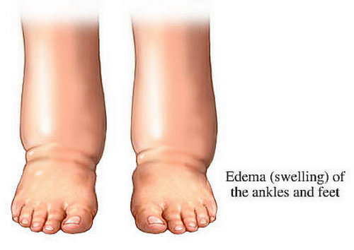 Edema of the ankles and feet image photo picture