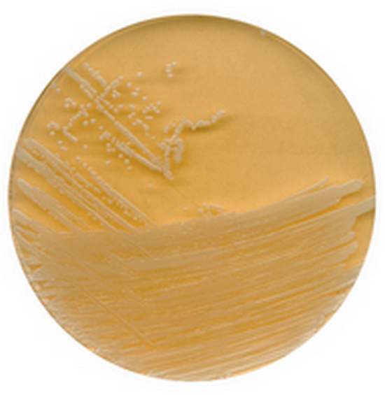 A tryptic soy agar containing lecithin and polysorbate 80