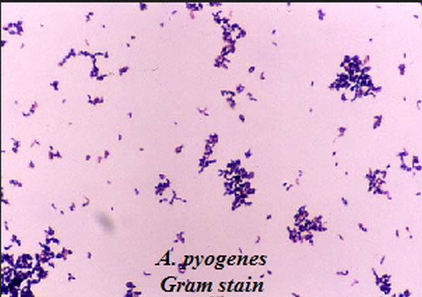Gram Positive Coccobacilli