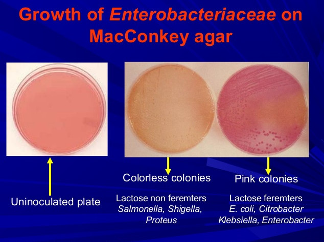 Growth of Enterobacteriaceae on a MacConkey Agar