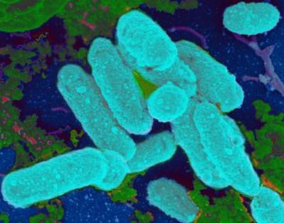 Haemophilus influenzae bacteria image