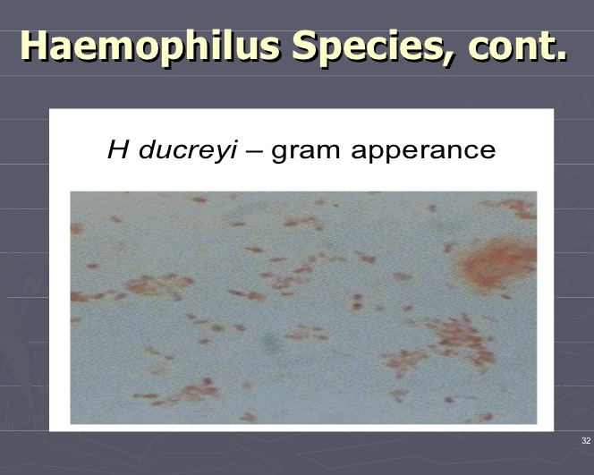 Haemophilus species image