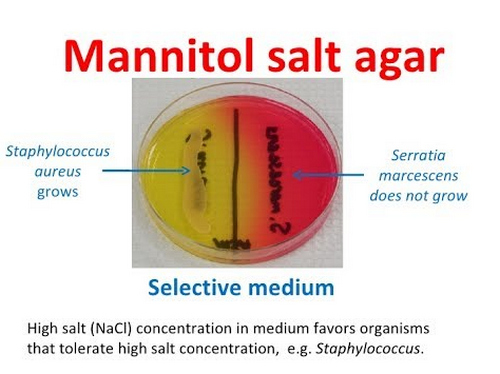 Mannitol salt agar test as a part of a selective medium