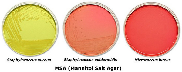 Mannitol salt agar test