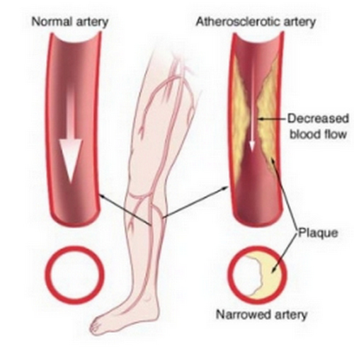 A comparison image between a normal artery and atherosclerotic artery