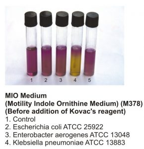 Motility test using the MIO medium