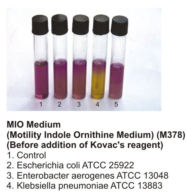 Motility test using the MIO medium