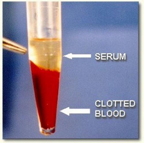 Serum is the fluid component of the blood