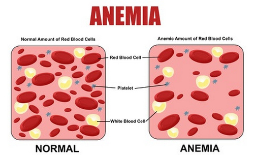 Anemia is one of the leading causes of low MCH reading