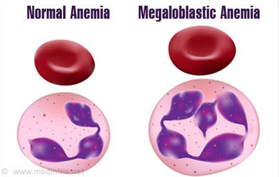 MCH is dramatically high in patients with megaloblastic anemia