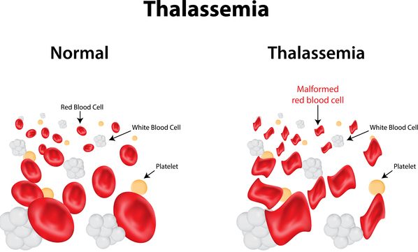 Thalassemia is also linked with the decrease in MCH reading