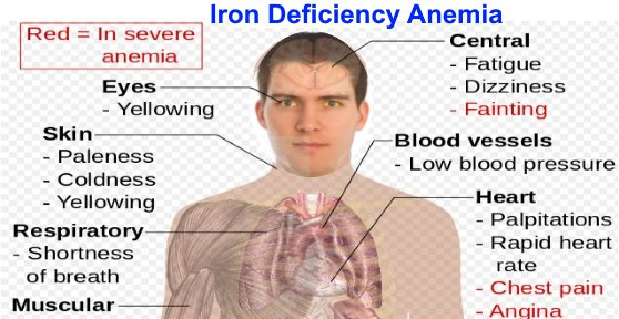 classic manifestations of patients with iron deficiency anemia