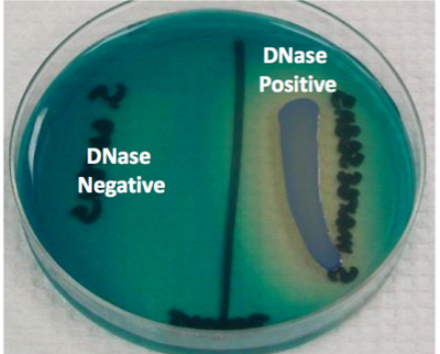 left side of the plate tests negative while the right side tests positive to DNase test