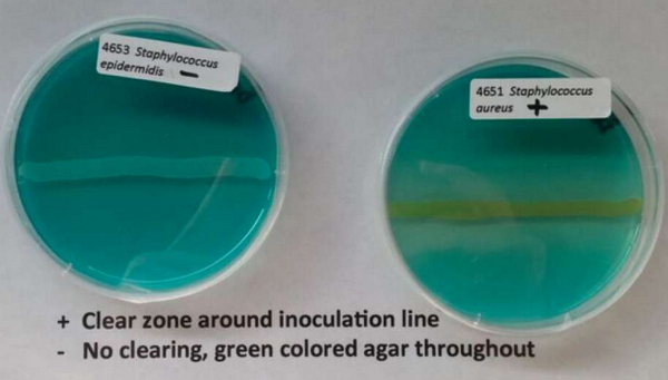 positive DNase test is characterized by a clear zone around inoculation line