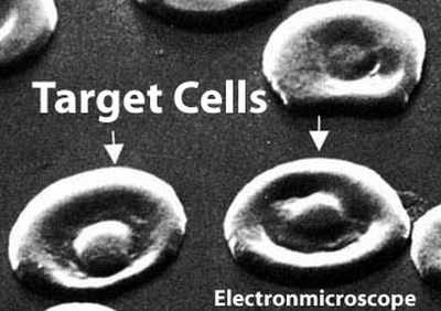 closer look at the target cells using an electron microscope
