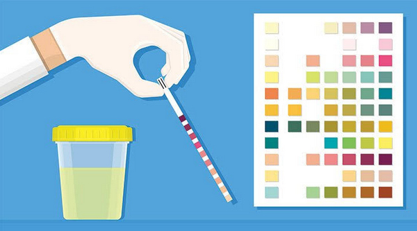 urine test strip can be used to check for the level of ketones in urine at home