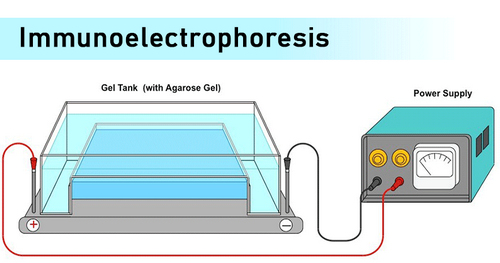 immunoelectrophoresis procedure is performed using the machine as illustrated in the image