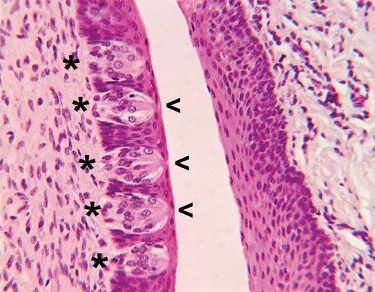 structure of microvilli image picture
